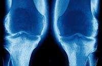 Деформирующий остеоартроз. Фото с сайта www.sciencephoto.com