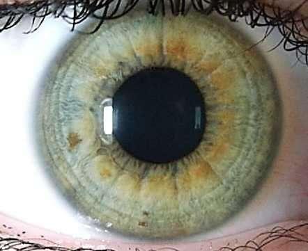 Диагностика заболеваний по радужке глаз